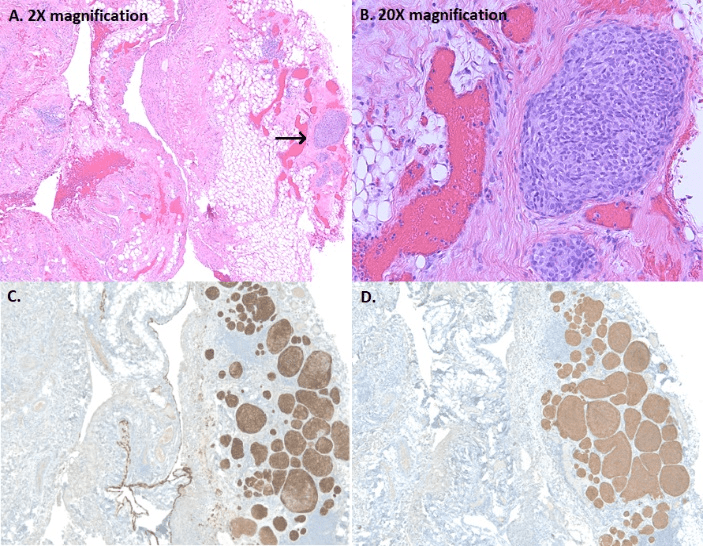 Primary Typical Carcinoid of The Pleura, A Rare Incidental