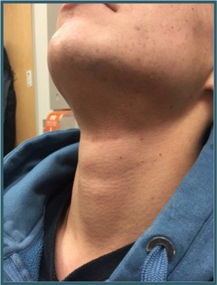 A Case Series Of Penetrating Laryngeal Trauma Managed Without